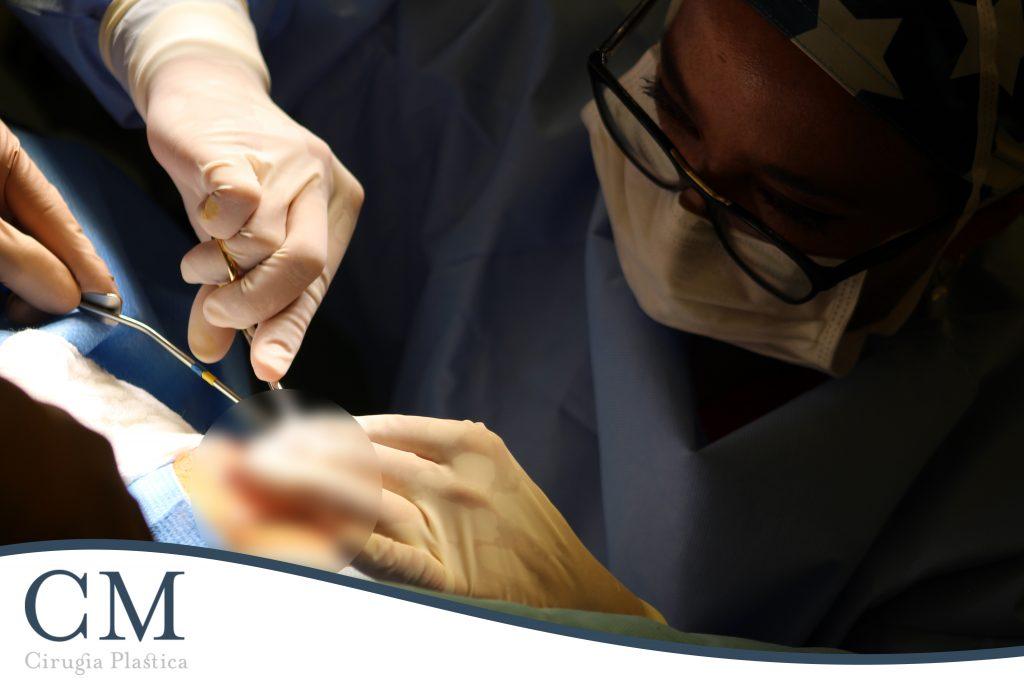Cirugía Plástica - Rinoplastía